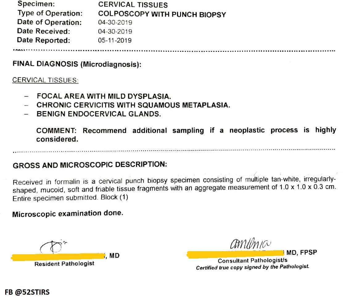Colposcopy and Cervical Biopsy Results - 52StirsLounge