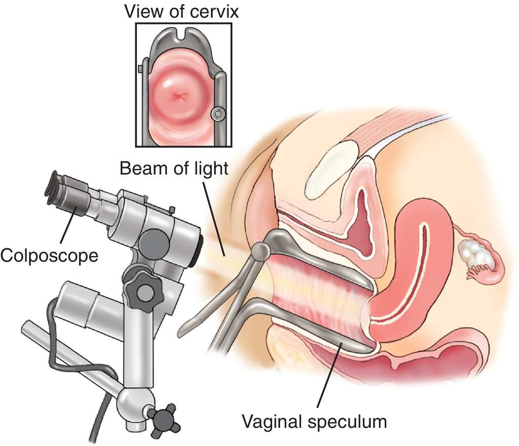 FAQs about Colposcopy - 52 Stirs Lounge