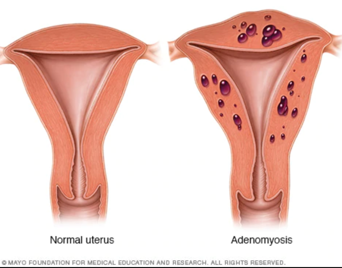 FAQs about Adenomyosis - 52Stirs.com